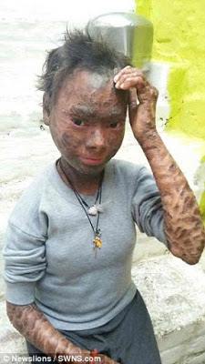 Menghidap penyakit ganjil, gadis lni dlbuang sekolah kerana murid lain takvt m3lihatny4